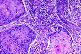 stock photo of histology  - Squamous cell carcinoma of a human - JPG