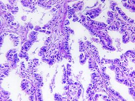 pic of histology  - Well differentiated adenocarcinoma of a human - JPG