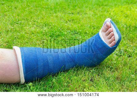 One blue gypsum leg of child on green grass