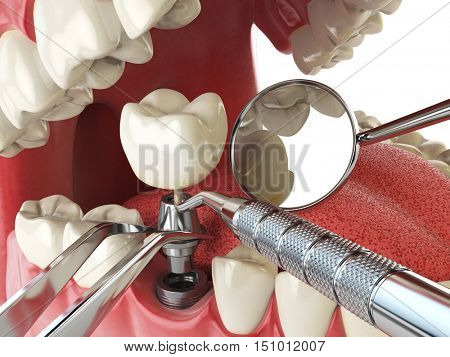 Tooth human implant. Dental implantation concept. Human teeth or dentures anddental tools. 3d illustration