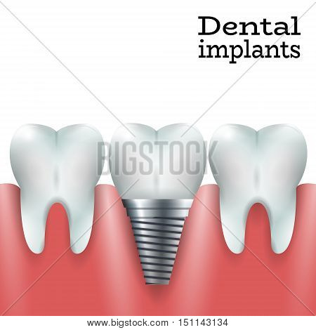 Teeth Family with Dental Implant in Healthy Gum.Dental Implant Logo Surgery Dentistry Vector Illustration. Medical Conception Tutorial for Tooth Clinic.Implant Crown and Abudment for Dental Clinic