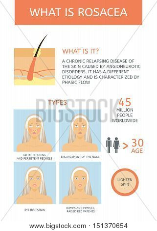 Rosacea: Causes, Types and facts. Infographics. Information about the disease