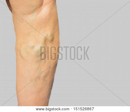 The varicose veins on a legs of old woman on gray