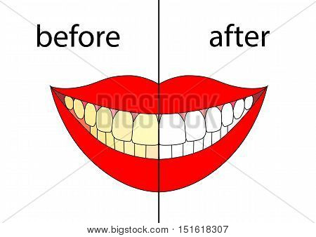 Teeth before and after on withe background. Vector illustration