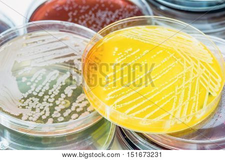 Bacterial Culture Growth On Selective Media.