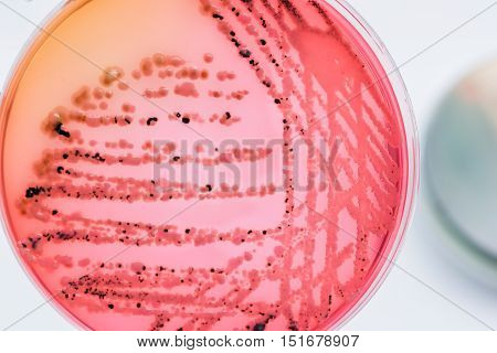 Bacterial Colonies Culture On  Selective Agar Media Xlt Agar (xylose Lysine Tergitol) Contains Small