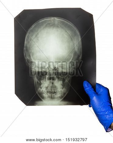 Doctor is looking X-ray of the head
