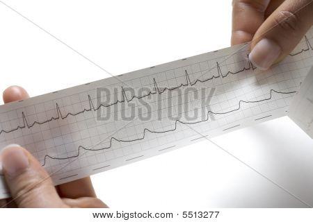 eine regelmäßige EKG auf weißem hintergrund holding hände