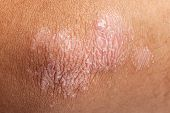 stock photo of elbows  - Psoriasis skin rash on elbow skin closeup - JPG