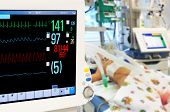 stock photo of intensive care unit  - Patients monitor in neonatal intensive care unit - JPG