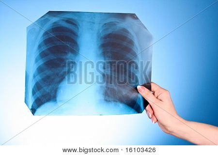 X-Ray Image of chest on blue background in hand
