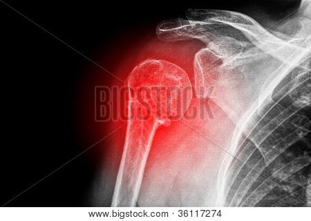 X-ray of a sore shoulder