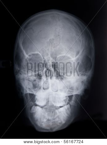 X-ray of a deformed skull
