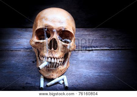 Skull With Cigarettes, Still Life.