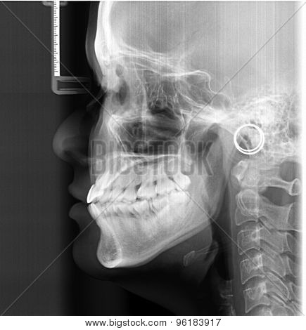 Lateral Cephalogram For Orthodontic