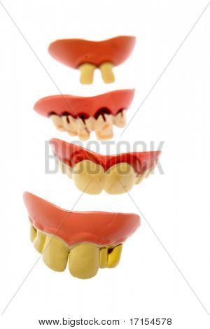 Teeth isolated on white