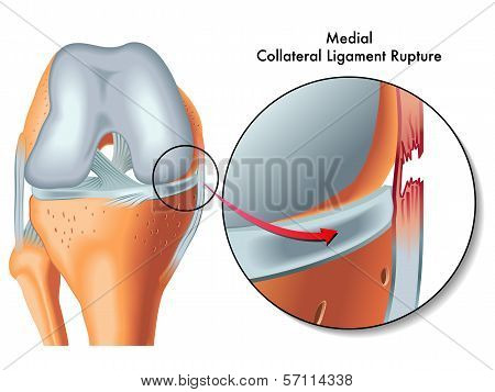 Medial Collateral Rupture.eps