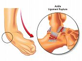 stock photo of collagen  - Medical illustration of the consequences of ligament rupture of the ankle - JPG