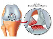 image of trauma  - medical Illustration of anterior cruciate ligament rupture - JPG