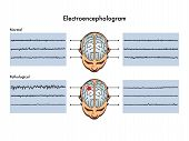 image of scalping  - medical illustration that shows the result of an electroencephalogram - JPG