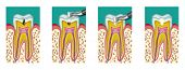 stock photo of anesthesia  - Dental caries dentistry intervention with drill four steps - JPG