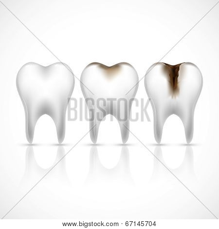 Teeth realistic set