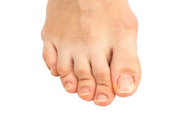 stock photo of human toe  - Closeup of human foot with a cracked and peeling toe nail on the largest toe - JPG