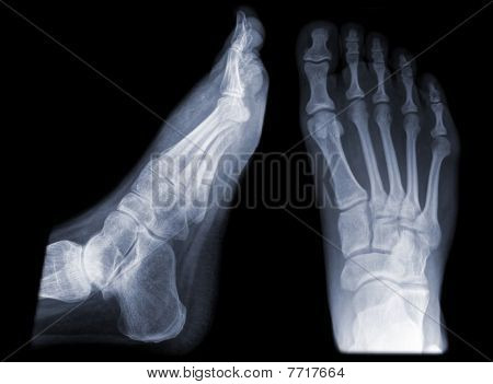 human foot /feet on x-ray