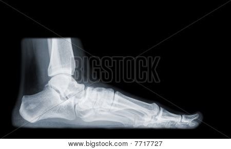 foot on x-ray