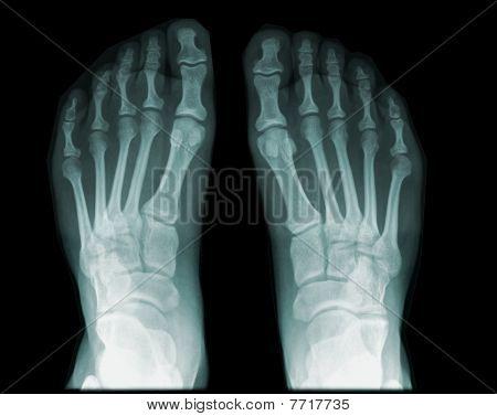 human foot /feet on x-ray