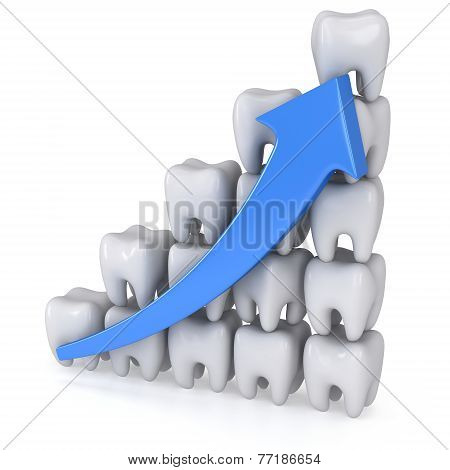 3D Teeth Bar Diagram With Blue Arrow