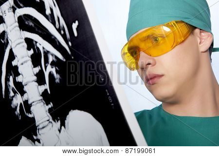 Male doctor looking at an X-ray spine