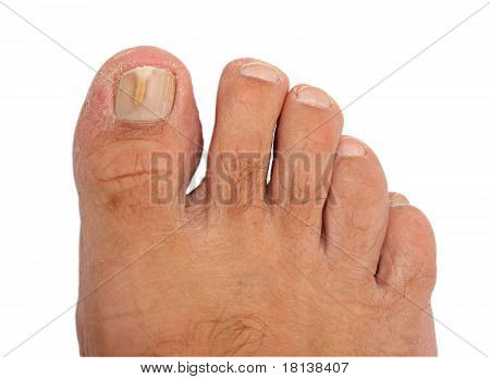 A Toenail Infected With A Fungus