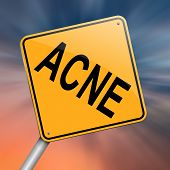 pic of pimples  - Illustration depicting a roadsign with an acne concept - JPG