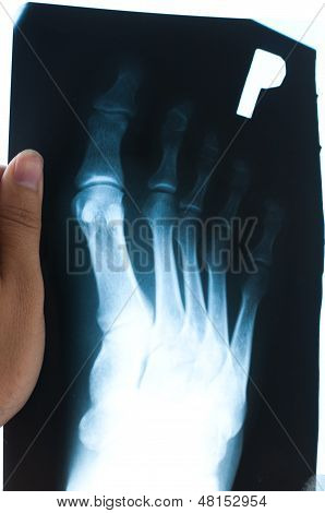 Authentic X-ray Of Male Foot