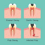 pic of cavities  - four periods of tooth decay  - JPG