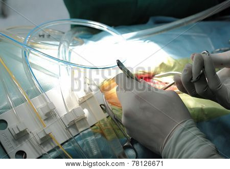 Surgeon's Hands And Tools