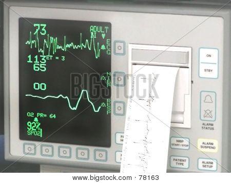 Cardiopulmonary Monitor