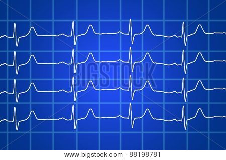Heart Beats Electrocardiogram Over Blue Background