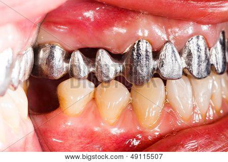 Metal Basis Dental Bridge