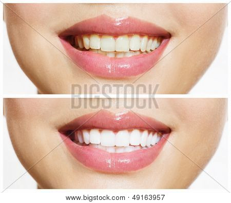 Woman Teeth Before and After Whitening. Over white background. Happy smiling woman. Dental health Concept. Oral Care