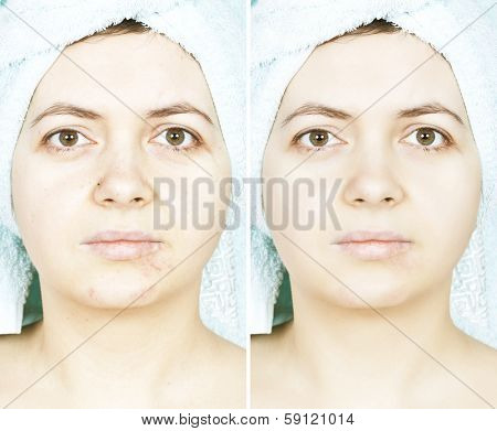 Woman with spotty skin with cicatrices and wrinkles and healed soft skin