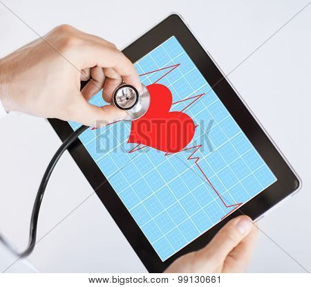 doctor with stethoscope listening heart beat on tablet pc