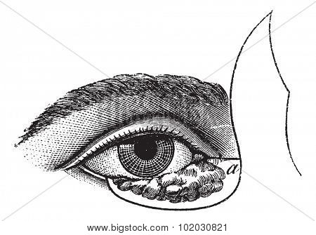 Blepharoplasty by the method of Blasius, vintage engraved illustration. Usual Medicine Dictionary - Paul Labarthe - 1885.