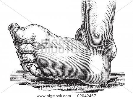 Clubfoot or congenital talipes equinovarus, vintage engraved illustration. Usual Medicine Dictionary - Paul Labarthe - 1885.