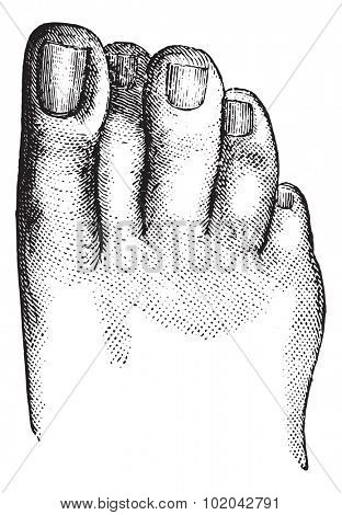 Faulty position of the second toe, vintage engraved illustration. Usual Medicine Dictionary - Paul Labarthe - 1885.