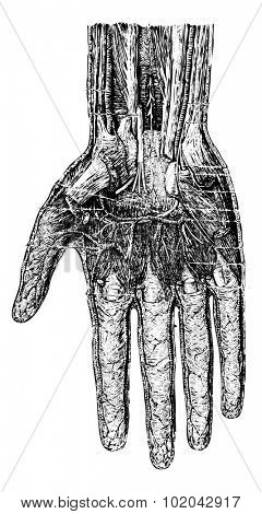 Deep layer of the hand (palmar surface), vintage engraved illustration. Usual Medicine Dictionary - Paul Labarthe - 1885.