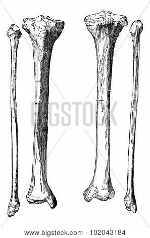 Leg Bones, Tibia and Fibula, vintage engraved illustration. Usual Medicine Dictionary by Dr Labarthe - 1885