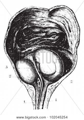Enlarged prostate or Benign prostatic hyperplasia (BPH), determining a stagnation of urine but not a complete retention, vintage engraved illustration. Usual Medicine Dictionary by Dr Labarthe - 1885
