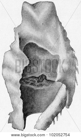 Perichondritis with laryngeal ulceration, vintage engraved illustration.